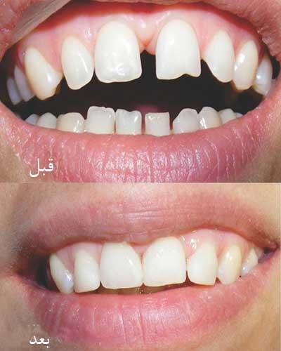 درمان دندان های فاصله دار