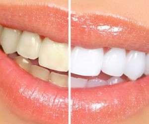 بهترین راه برای سفید شدن دندان ها