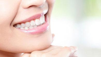 داشتن دندانهایی سفید بدون جرم گیری