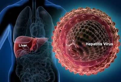 هپاتیت چیست؟