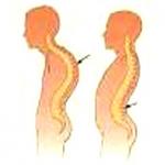 مقاله ناهنجاری های جسمی و راه های تشخیص و درمان آن
