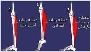مقاله در مورد گرفتگی عضلات