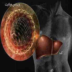 آمار بیماری هپاتیت